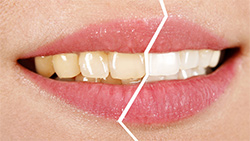 Whitening: Before/After